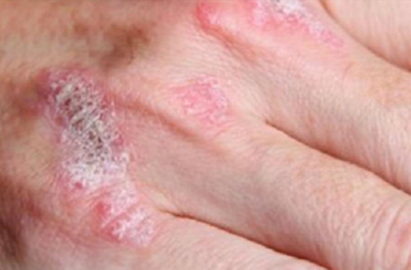 Lhoméopathie à atopitcheskom la dermatite de lenfant