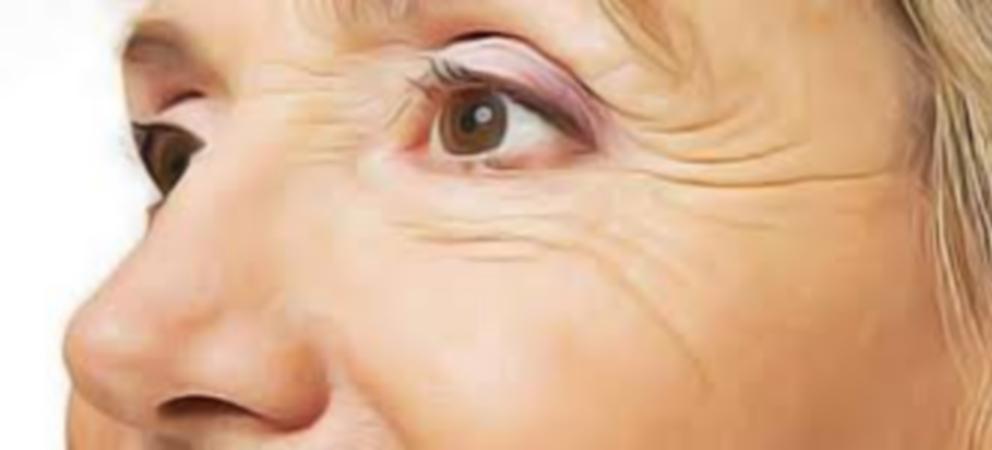 Comment lutter contre les rides des yeux comment les for Anti rides yeux maison