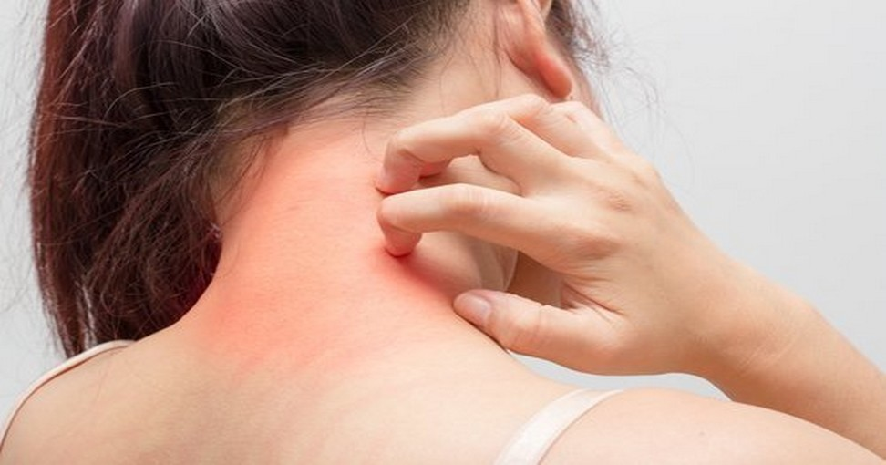 La sortie de la peau du psoriasis